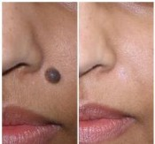 Facial mole removal before and after pictures