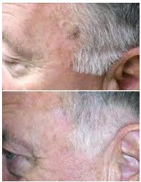 Mole removal before and after pictures