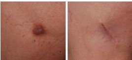 Mole Removal Pictures | Photos - See it to Beleive it