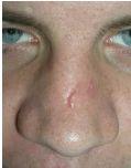 Mole removal scar picture
